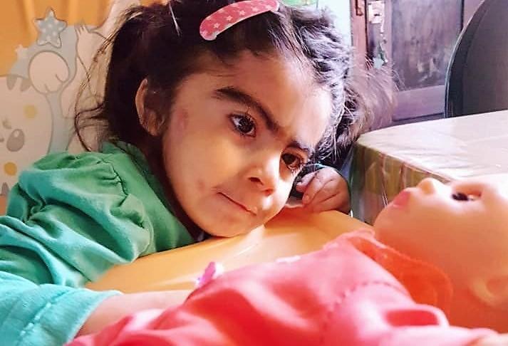 La niña que nació con síndrome de Cornelia de Lange.